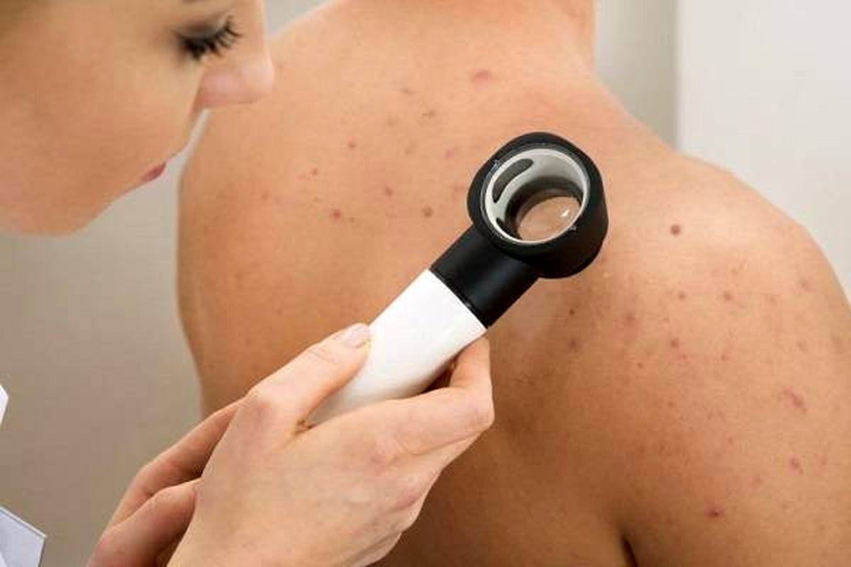 راه های پیشگیری از آکنه های پوستی +درمان