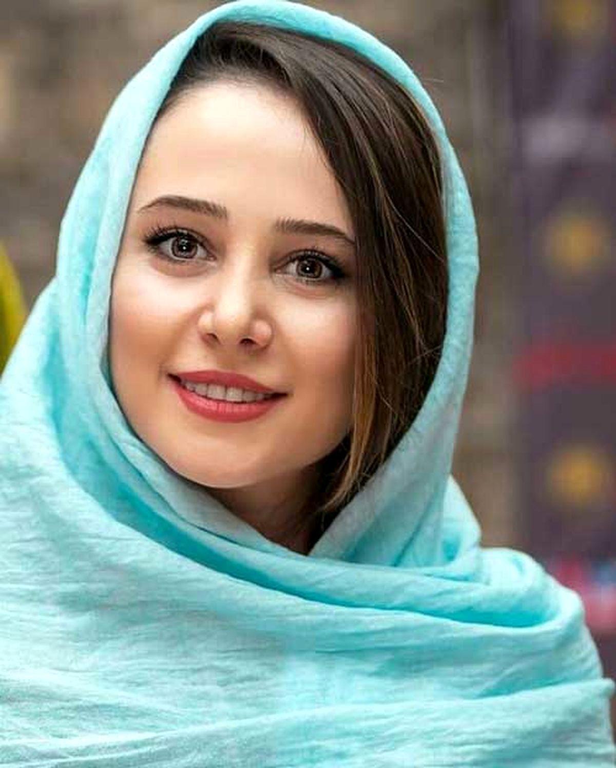 تغییر چهره الناز حبیبی بعد از عمل زیبایی؛ عکس