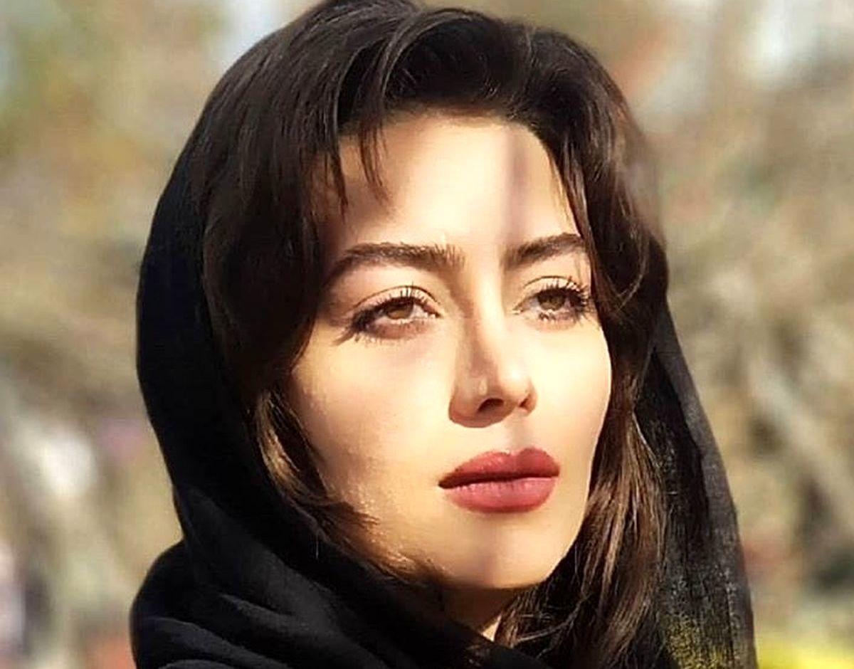 عکس جدید هدیه بازوند (روژان نون خ) بعد از عمل زیبایی + عکس عشقهای زندگی بازوند